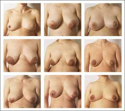 slappe bryster billeder af nøgne damer